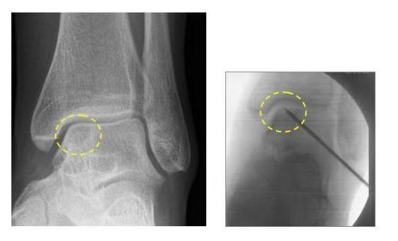 osteochondritis dissecans sprunggelenk
